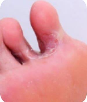 se udă și miroase între degete diagnosis banding enterobiasis